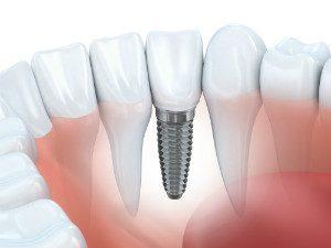 Dental Implants in Aurora